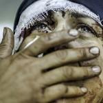 injured syrian woman